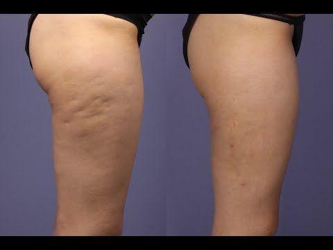 Как избавиться от целлюлита после родов на ногах
