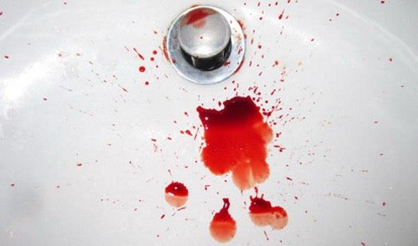 Кровотечения при геморрое