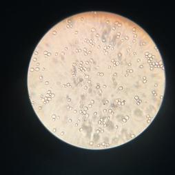 levures au microscope