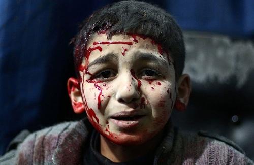 Syrie : le Hezbollah massacre des femmes et des enfants, par balles et au couteau