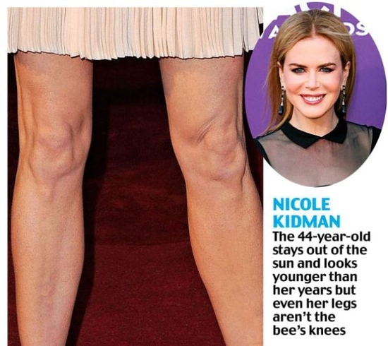 saggy_knees_show_celebs_true_age_640_11