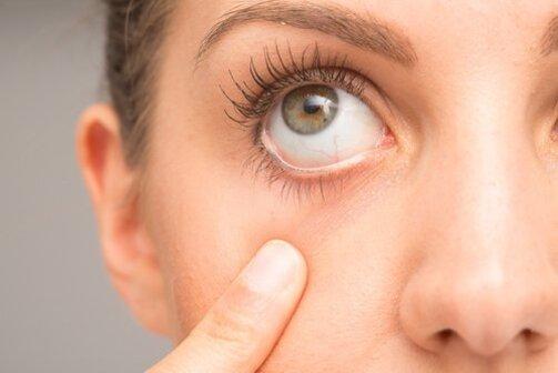 la carotte évite les problèmes oculaires