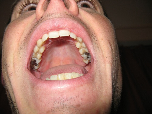 dents-caries-amalgames-brillenschlange-500x375