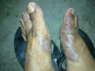 Obat paling ampuh mengobati eksim di kaki menahun sampai ke akarnya