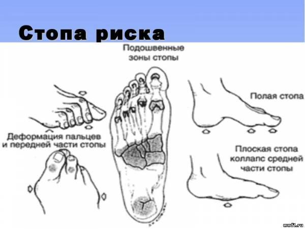 Ампутация ног при сахарном диабете выживаемость