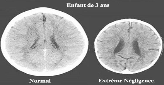 Des scanners choquants montrent l'impact réel de l'amour sur le cerveau d'un enfant