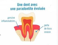 Les complications des dents et des gencives