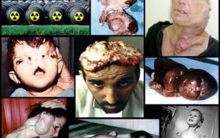 palestiniens-TB-pic.php.jpg