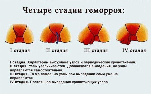 Геморрой как лечить дома узлы
