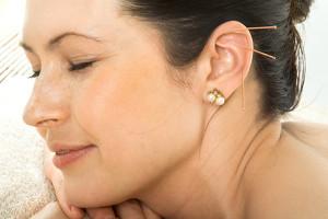 L'acupuncture comme aide à la minceur