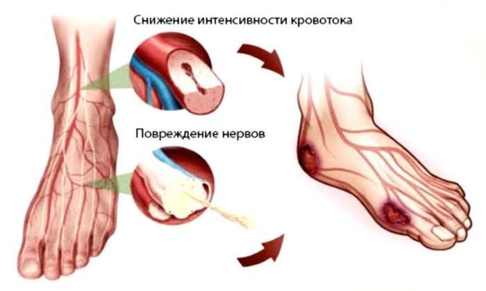 Больной палец при диабете лечение