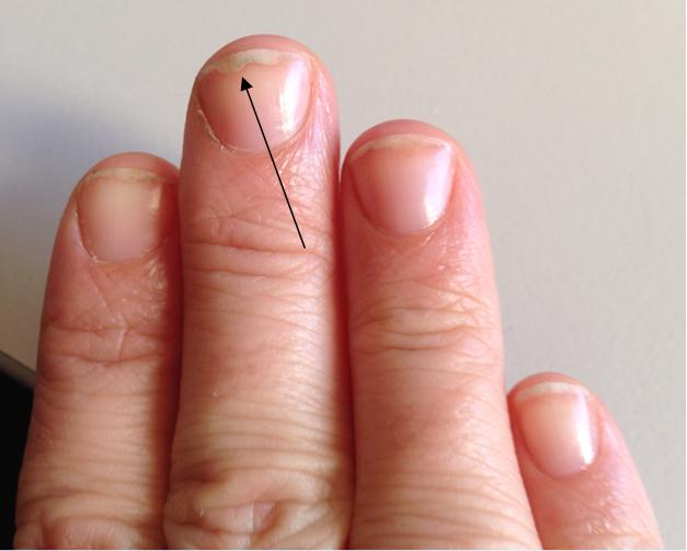 Retrouver des beaux ongles naturels après