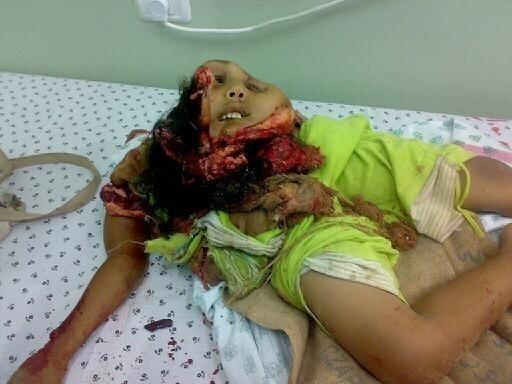 palestine-enfant-dechiquetee-n843610511_5514617_9867.jpeg