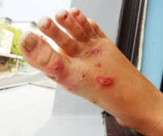 Obat menghilangkan penyakit gatal eksim menahun di kaki