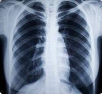embolie-pulmonaire