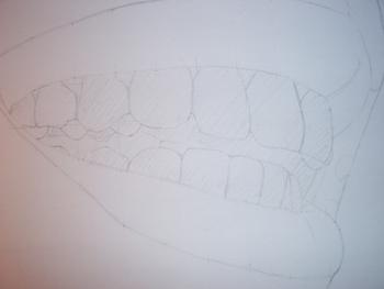 Pas à Pas Dents 6