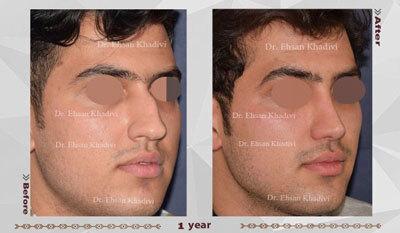 نمونه کار دکتر احسان خدیوی جراح بینی در مشهد 1