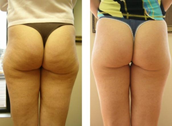Озон против целлюлита фото до и после