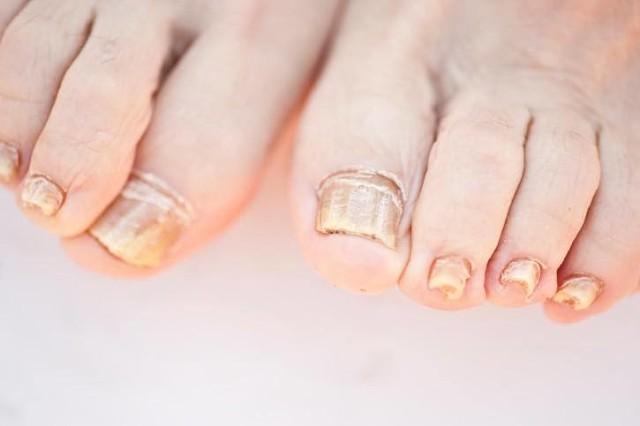 Ногти пальцев при диабете