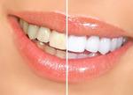 SANTE - dents