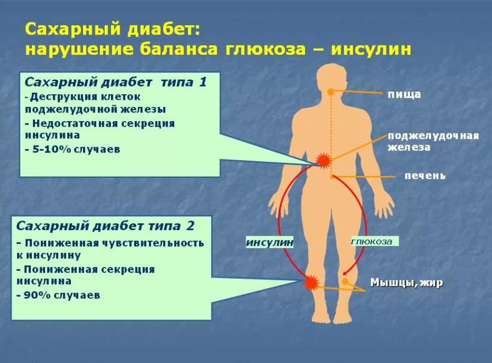 Повышен сахар в крови как снизить быстро