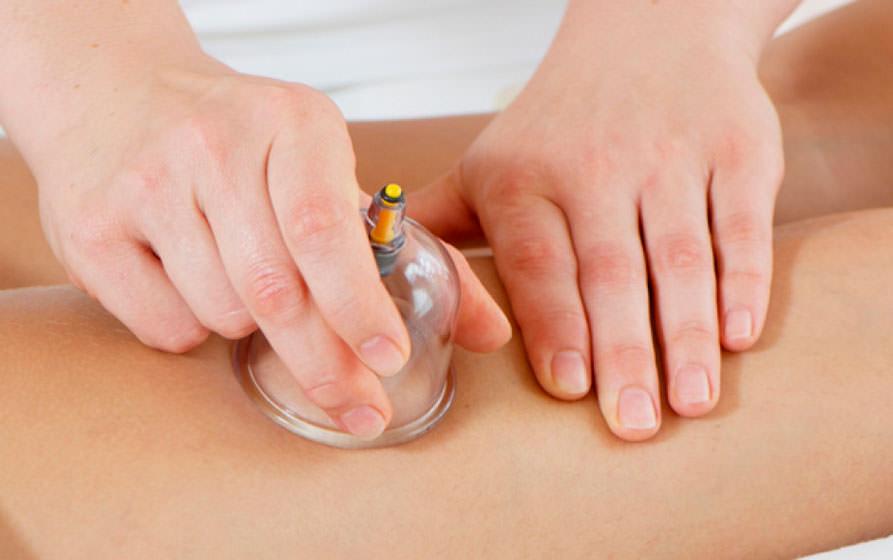 О вреде баночного массажа
