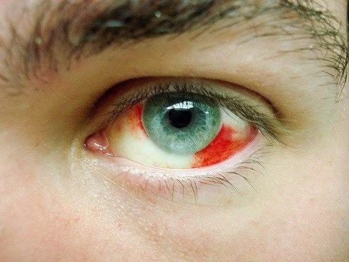 Pourquoi avons-nous des écoulements de sang dans les yeux ?