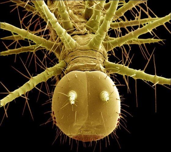 steve gschmeissner13 Incroyables photos au microscope dinsectes et araignées