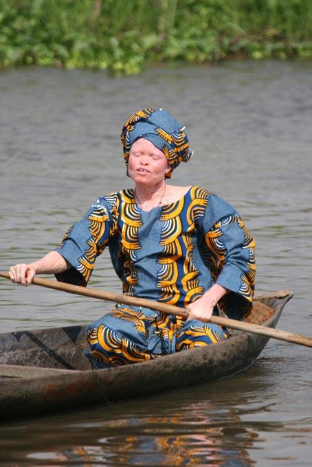 Albinisme en Afrique