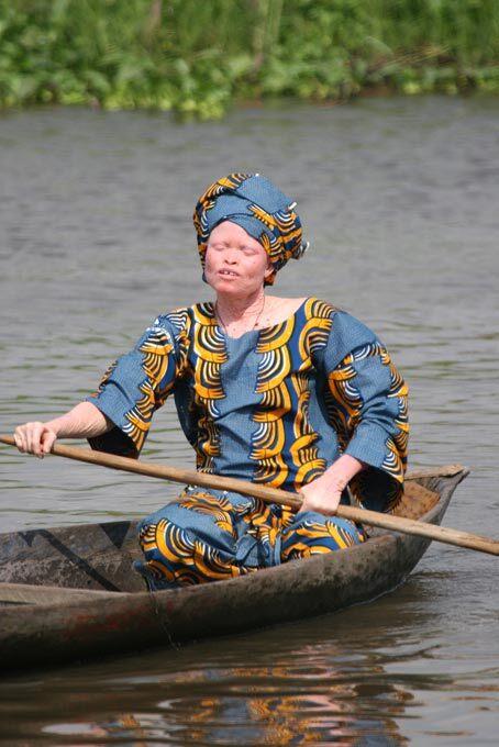 Femme albinos au Bénin