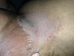 obat bokong dan paha gatal kering yang manjur