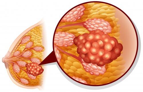 Le-grand-probleme-l-imprecision-de-la-mammographie-500x324
