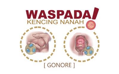 Cara Mencegah Kencing Nanah ,CARA MERAWAT GEJALA AWAL PENYAKIT KENCING NANAH
