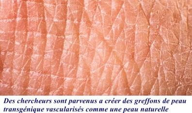 Un espoir pour améliorer les greffes de peau