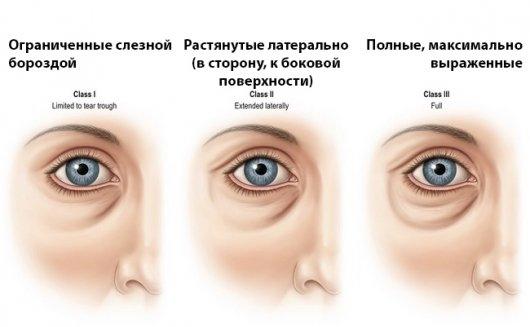 Лекарства от геморроя для мешков под глазами