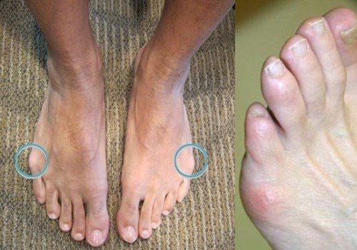 Болит мизинец на ноге сахарный диабет