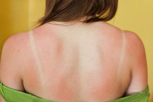 Soulager les coups de soleil par l'aromathérapie