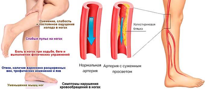 Как при диабете уменьшить боль в ногах