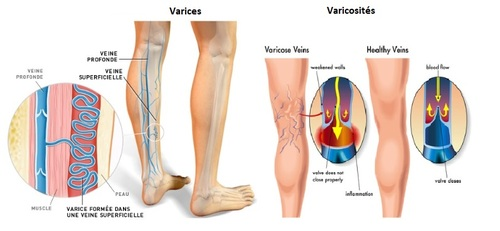 Causes de la varicosite