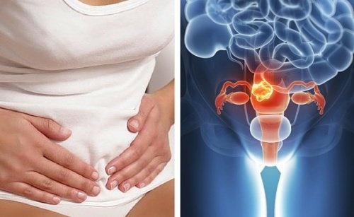 11 manières de détecter un cancer : la prévention est primordiale !