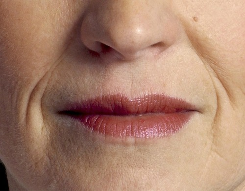 Say Farewell to Wrinkles Around the Mouth...