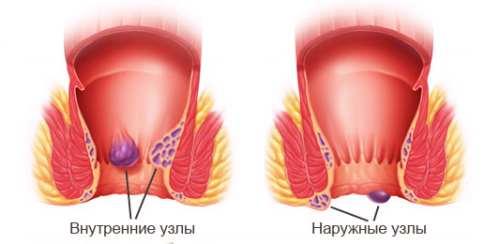 Очищение кишечника при геморрое