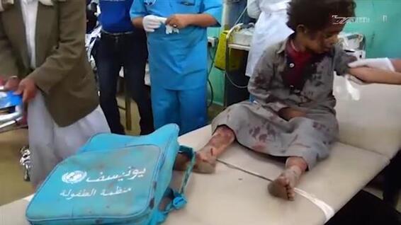Bain de sang au Yémen: 50 enfants morts ©Al-Masirah