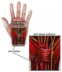symptome_carpien.jpg
