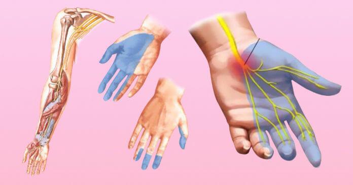 Причина онемения рук и ног при диабете