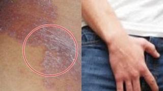 krim obat untuk gatal jamur di selangkangan wanita di apotik terdekat