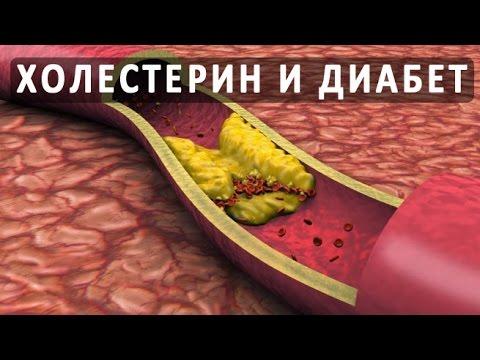 Высокий холестерин диабет