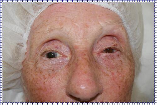 La pupille dilatée
