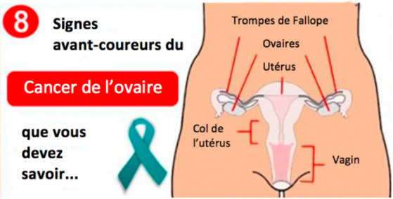 cancer-de-lovaire