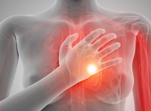 Arrêts-cardiaques